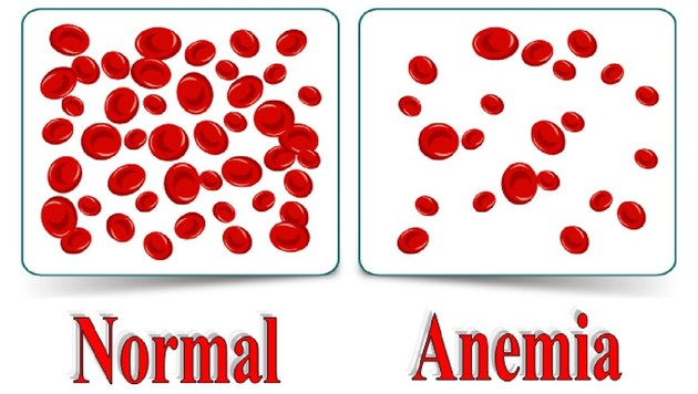 anemia 2